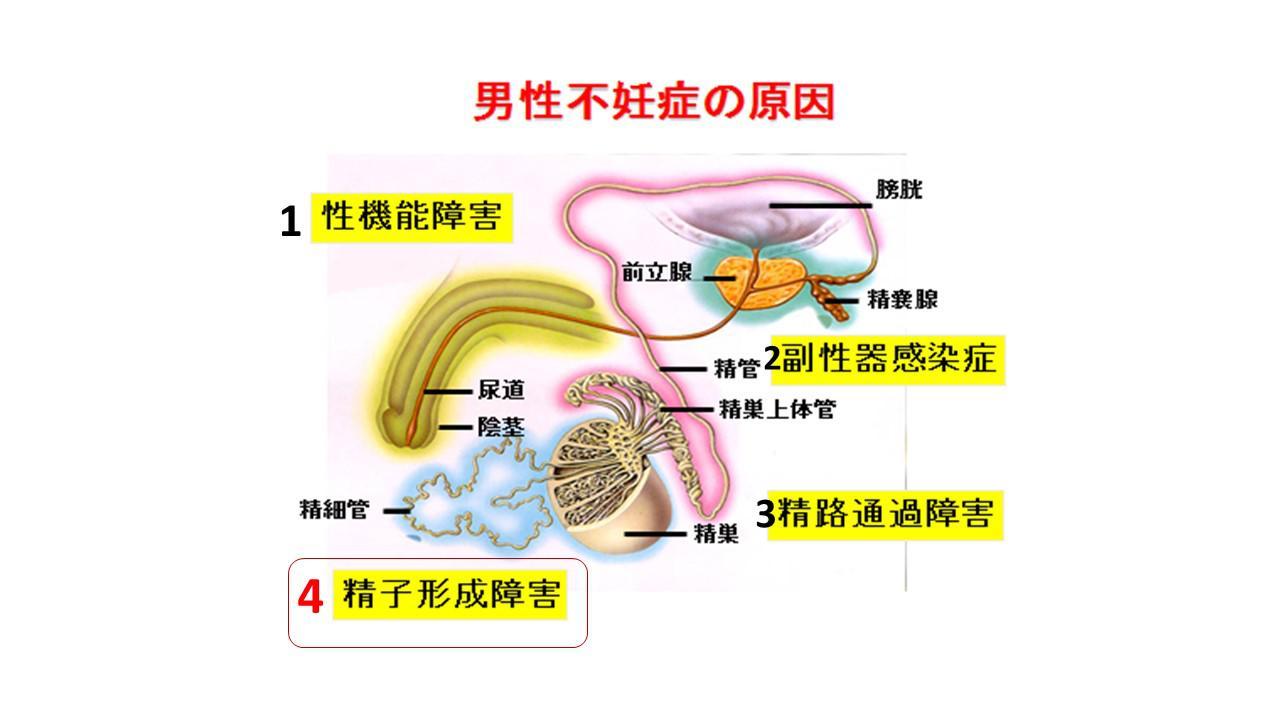 不妊原因と検査.jpg