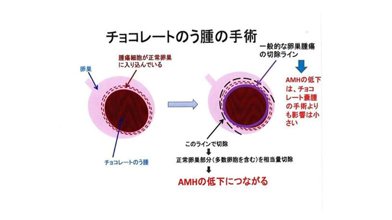 の う 腫 卵巣